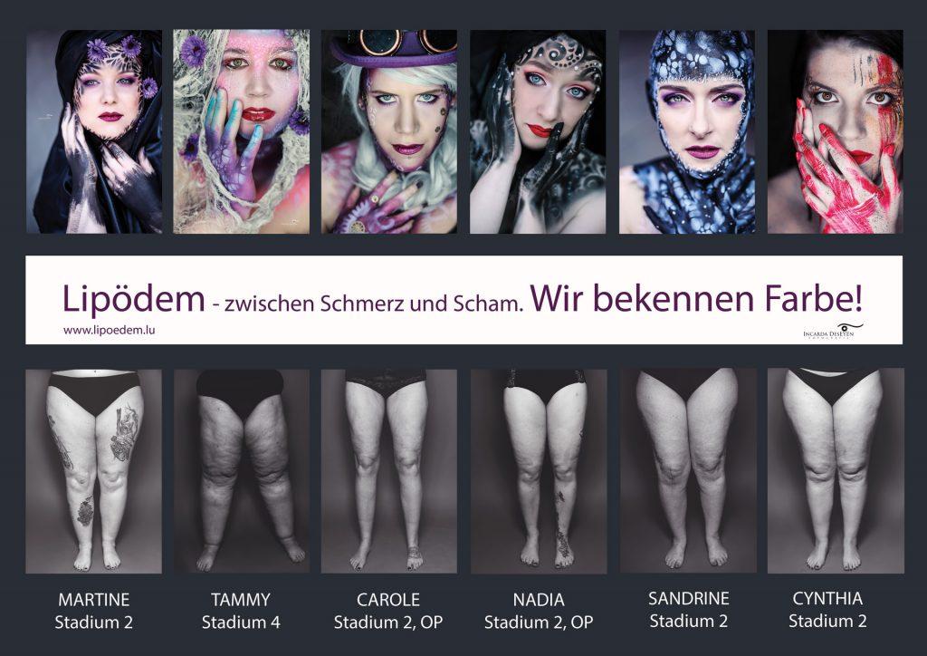 Fotokampagne: Lipödem – zwischen Schmerz und Scham. Wir bekennen Farbe!